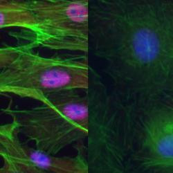 RBPMS is a master regulator of splicing in smooth muscle cells